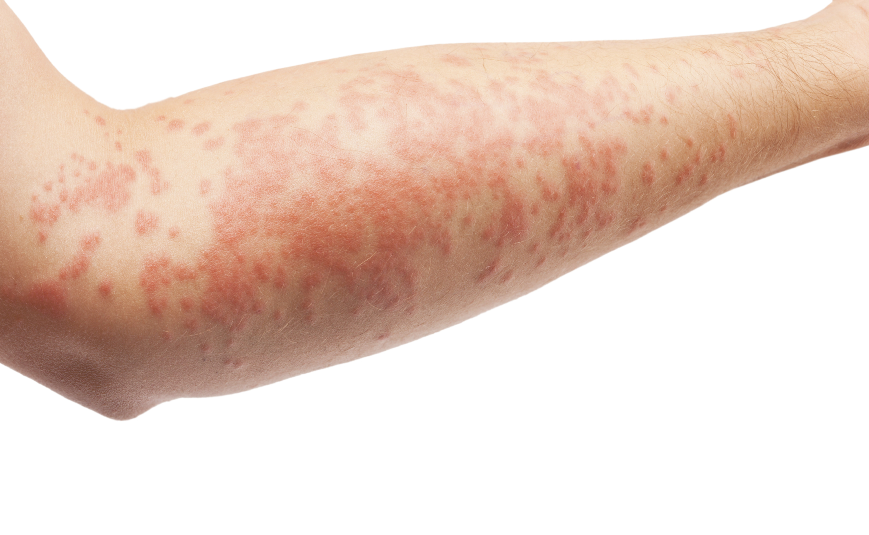 Picture of Atopic Dermatitis or Eczema – WebMD