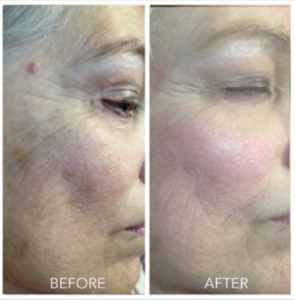 Micro Needling With The Rejuvapen Before And Afters