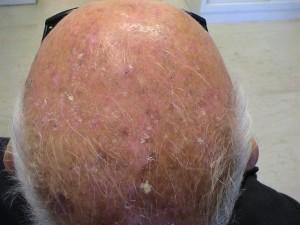 AKs actinic keratosis skin cancer