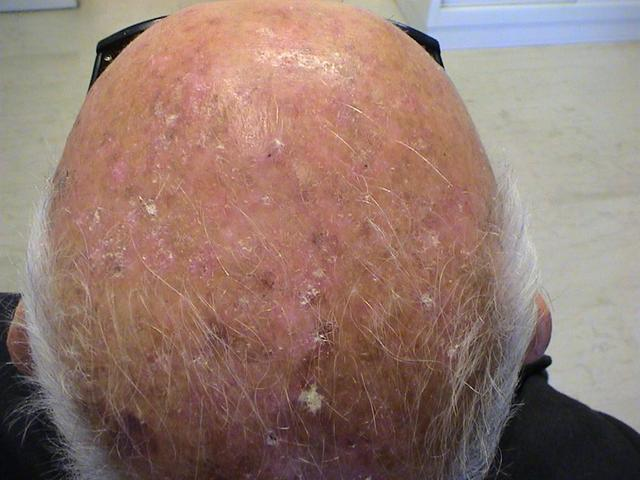 AKs actinic keratosis skin cancer common skin condition
