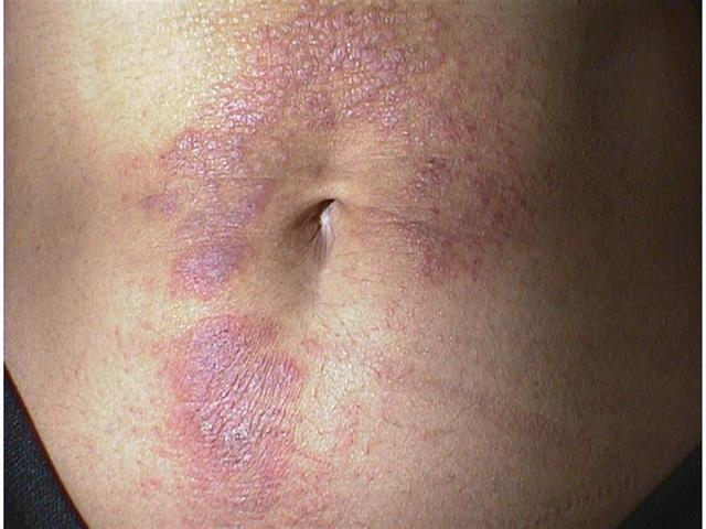 common skin condition eczema on stomach