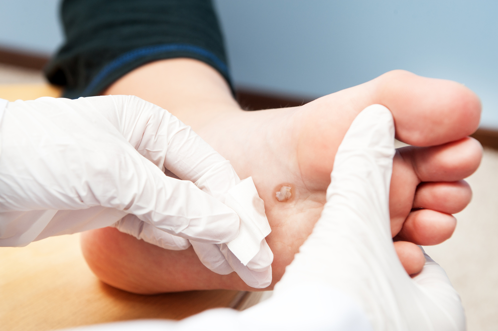 common skin condition warts on foot